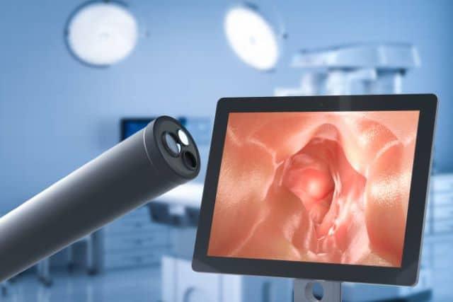 ankarada-anestezi-ile-endoskopi-yapan-hastaneler