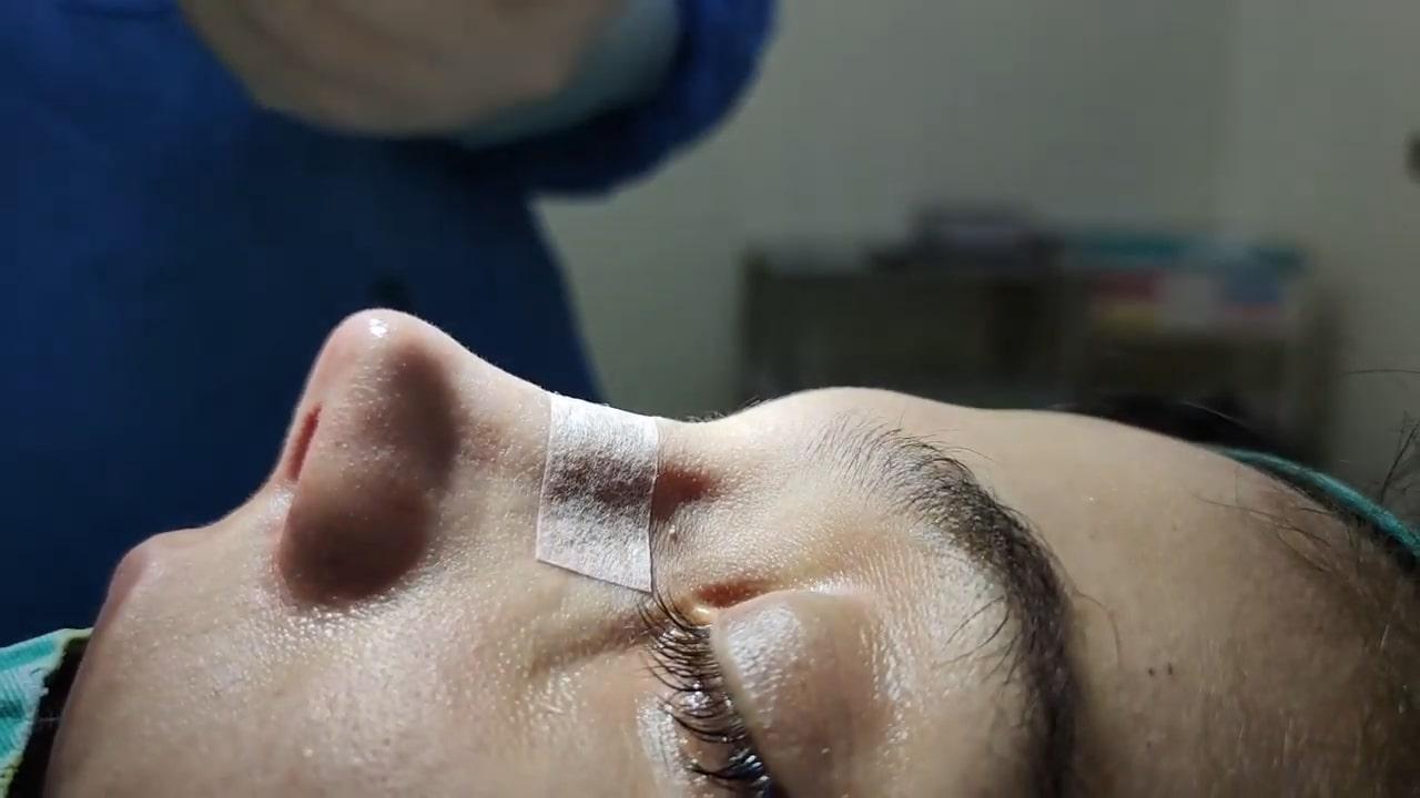 burun-kucultme-ameliyati-ne-kadar