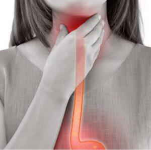 Reflü Hastalığı Neden Olur? 3 Farklı Reflü Hastalığı ve Tedavisi