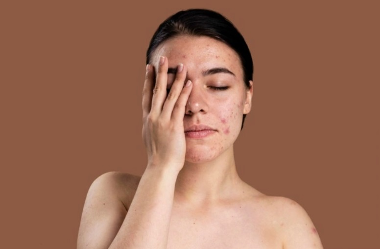 atopik-dermatit-nedir-4-farkli-atopik-dermatit-egzama-tedavisi